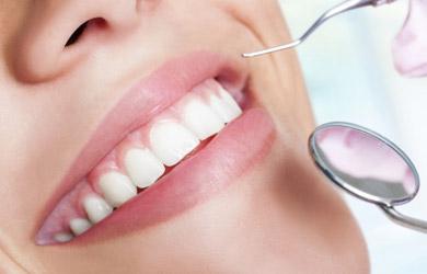 Blanqueamiento dental + higiene