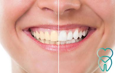 Blanqueamiento + Revisión completa + Higiene dental + Radiografía