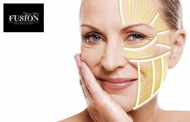 Tratamiento HIFU para una zona de la cara