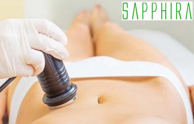 Tratamiento Ultrareductor para el abdomen: vacumterapia, radiofre